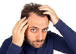 выпадение волосы у мужчин